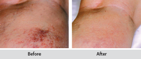 sclerotherapy - thread vein removal