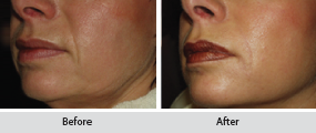 sculptra dermal filler